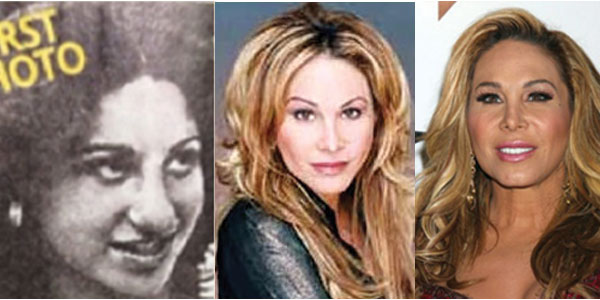 Adrienne Maloof Plastic Surgery Before and After 2017