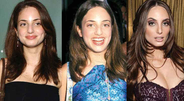 Alexa Ray Joel Plastic Surgery Before and After 2019