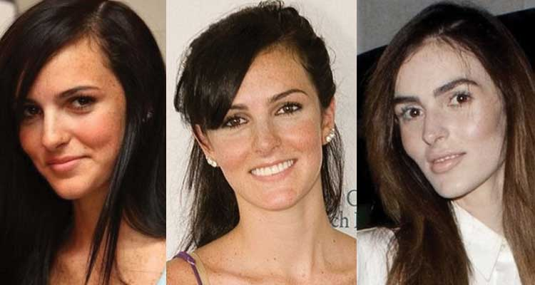 Ali Lohan Plastic Surgery Before and After 2018