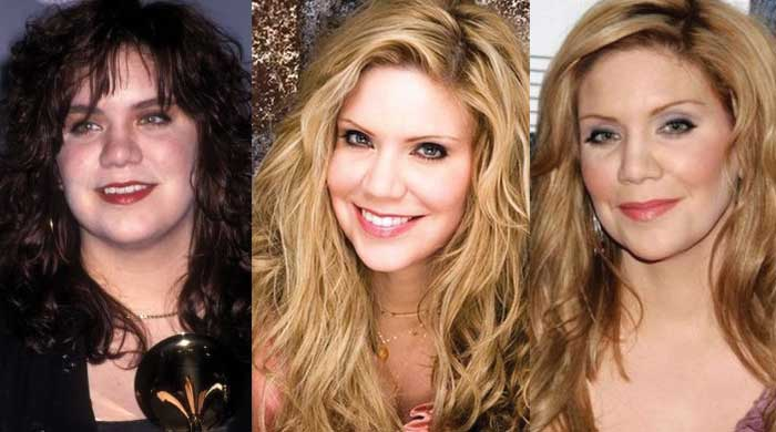 Alison Krauss Plastic Surgery Before and After 2020