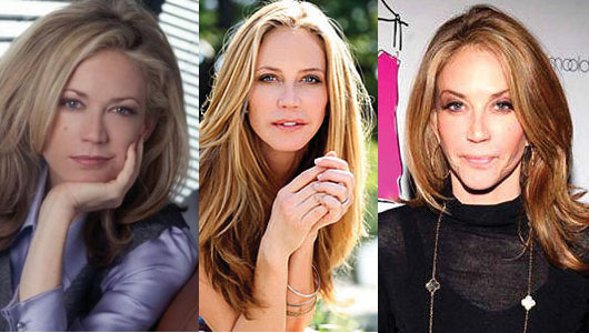 Ally Walker Plastic Surgery Before and After 2017