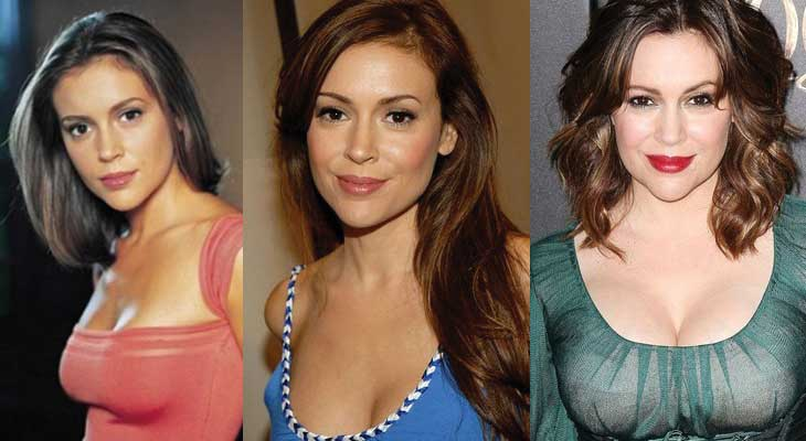 Alyssa Milano Plastic Surgery Before and After 2019