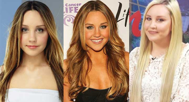Amanda Bynes Plastic Surgery Before and After 2018