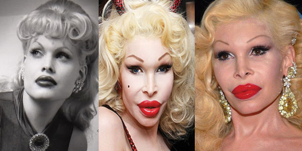 Amanda Lepore Plastic Surgery Before and After 2017