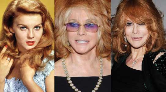 Ann Margret Plastic Surgery Before and After 2018