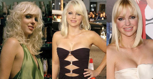 Anna Faris Plastic Surgery Before and After 2019