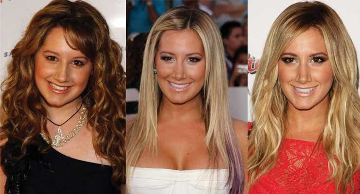 Ashley Tisdale Plastic Surgery Before and After 2019