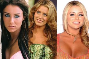 aubrey o day plastic surgery