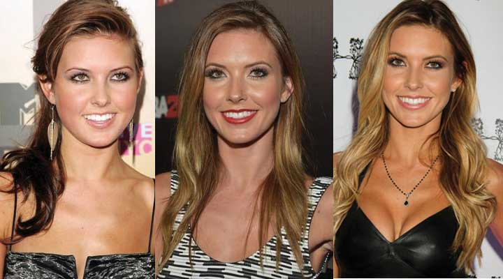 Audrina Patridge Plastic Surgery Before and After 2018