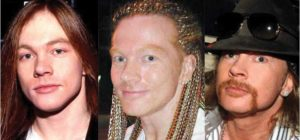 axl rose plastic surgery