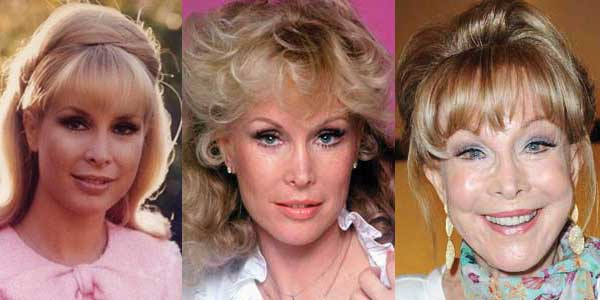 Barbara Eden Plastic Surgery Before and After 2018