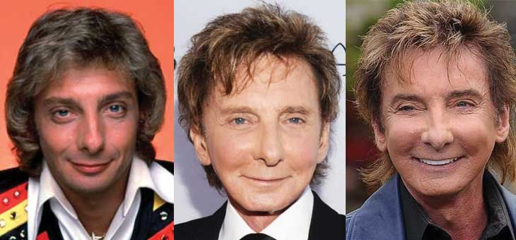 Barry Manilow Plastic Surgery Before and After 2019