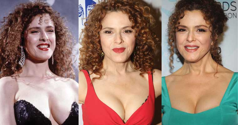 Bernadette Peters Plastic Surgery Before and After 2019