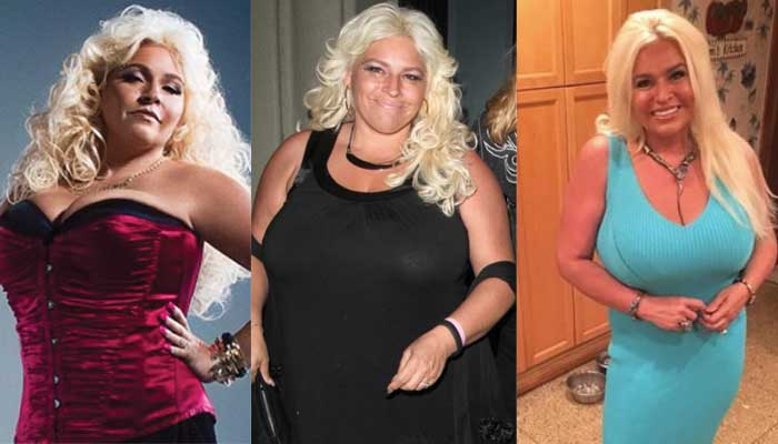 Beth Chapman Plastic Surgery Before and After 2018