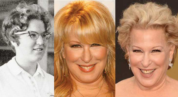 Bette Midler Plastic Surgery Before and After 2018