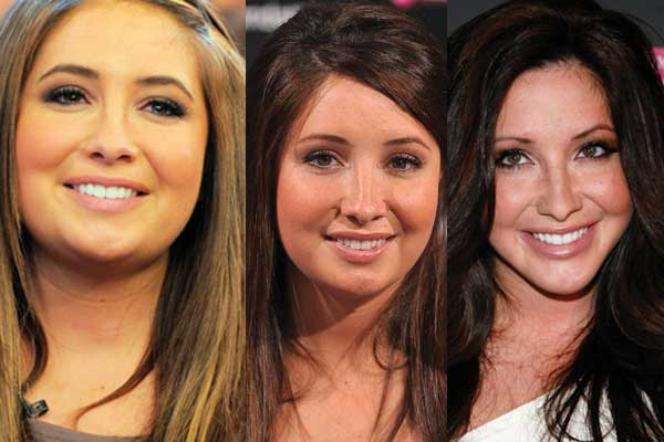 Bristol Palin Plastic Surgery Before and After 2017