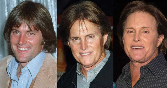 Bruce Jenner Plastic Surgery Before and After 2018
