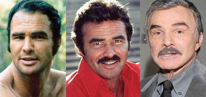Burt Reynolds Plastic Surgery Before and After 2018