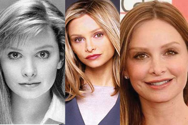 Calista Flockhart Plastic Surgery Before and After 2017
