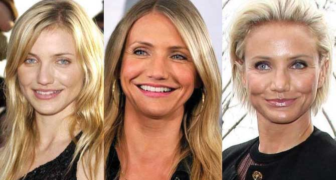 Cameron Diaz Plastic Surgery Before and After 2018
