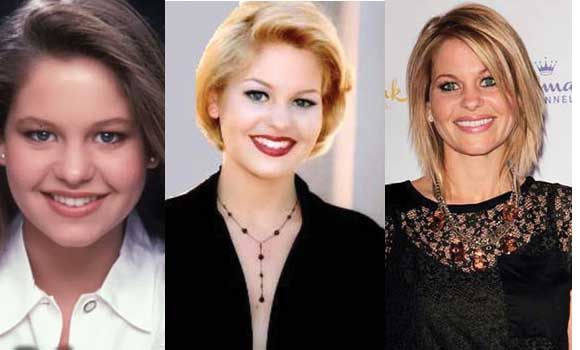 Candace Cameron Plastic Surgery Before and After 2017