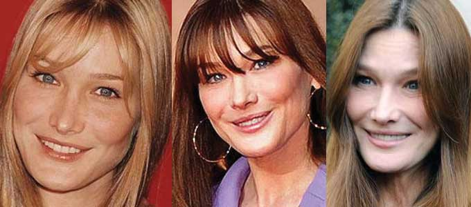 Carla Bruni Plastic Surgery Before and After 2018