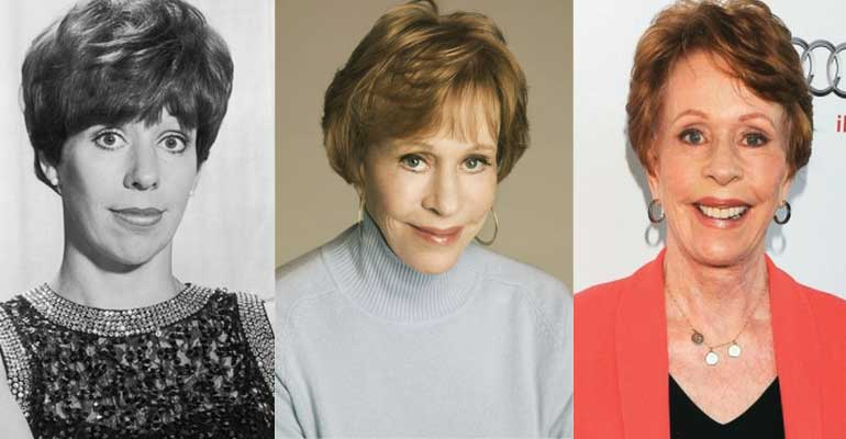 Carol Burnett Plastic Surgery Before and After 2018