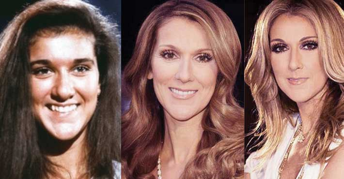 Celine Dion Plastic Surgery Before and After 2019