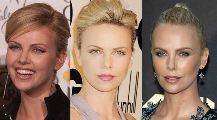 Charlize Theron Plastic Surgery Before and After 2018