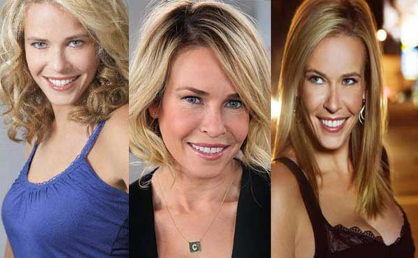 Chelsea Handler Plastic Surgery Before and After 2018