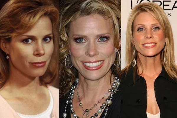 Cheryl Hines Plastic Surgery Before and After 2018