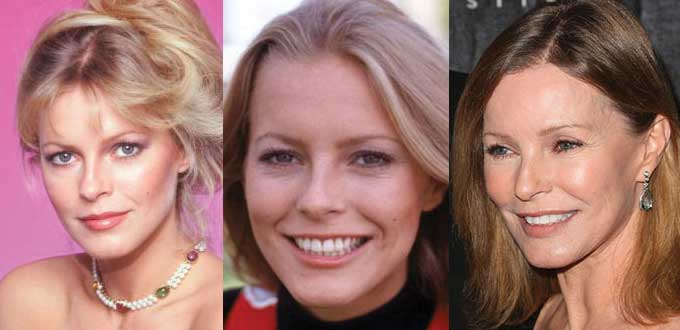 Cheryl Ladd Plastic Surgery Before and After 2018