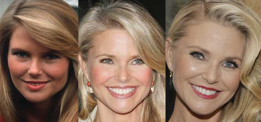 Christie Brinkley Plastic Surgery Before and After 2021