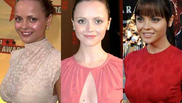 Christina Ricci Plastic Surgery Before and After 2017