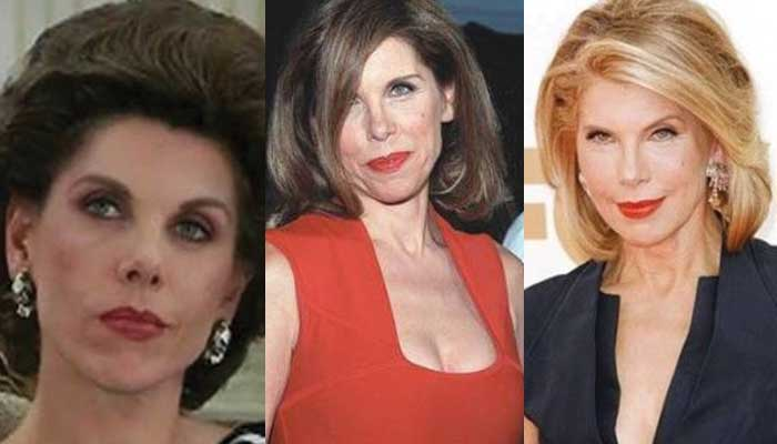 Christine Baranski Plastic Surgery Before and After 2017