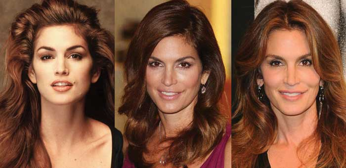 Cindy Crawford Plastic Surgery Before and After 2018