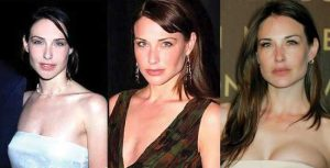 claire forlani plastic surgery