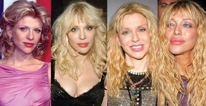 Courtney Love Plastic Surgery Before and After 2018