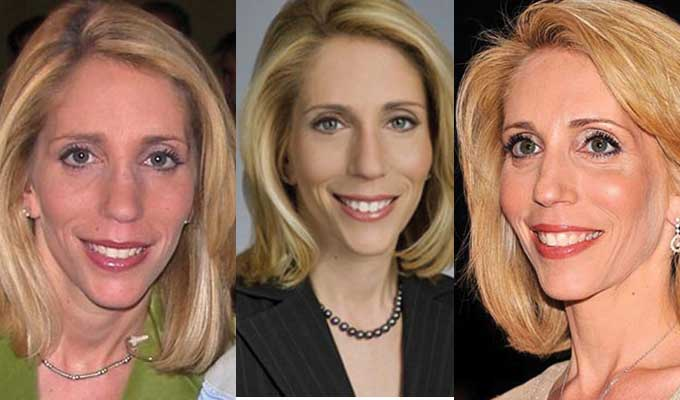 Dana Bash Plastic Surgery Before and After 2018