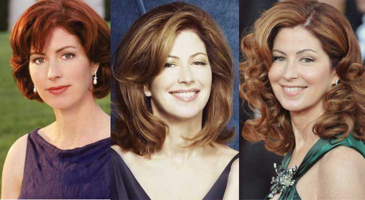 Dana Delany Plastic Surgery Before and After 2018