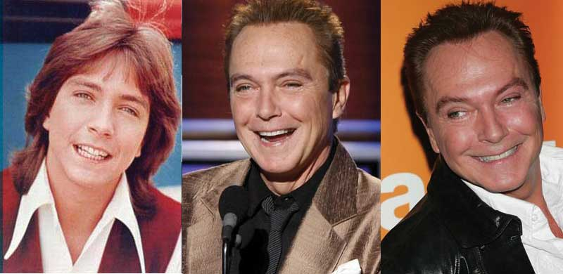 David Cassidy Plastic Surgery Before and After 2018
