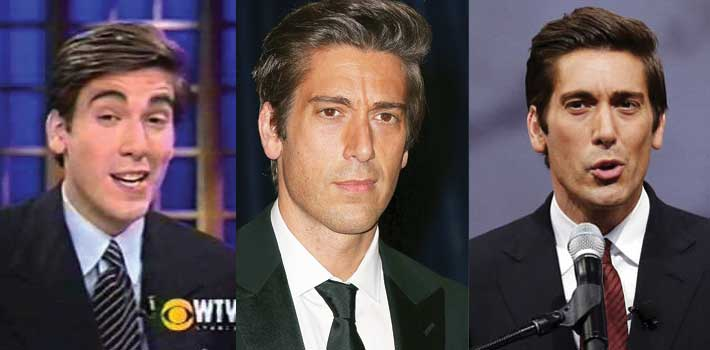 David Muir Plastic Surgery Before and After 2018