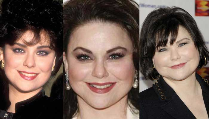 Delta Burke Plastic Surgery Before and After 2017