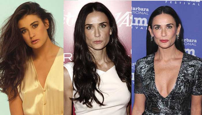Demi Moore Plastic Surgery Before and After 2018