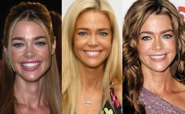 Denise Richards Plastic Surgery Before and After 2018