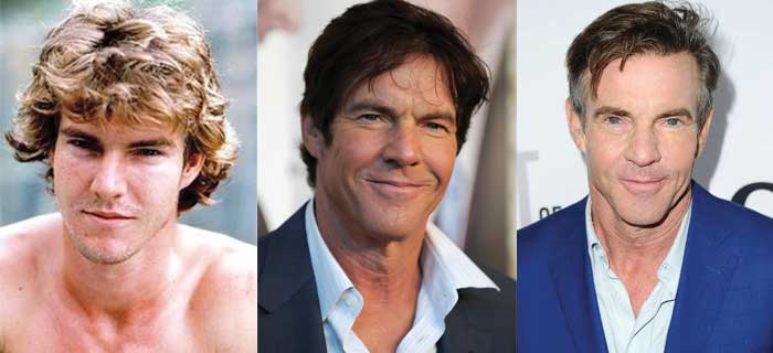 Dennis Quaid Plastic Surgery Before and After 2019