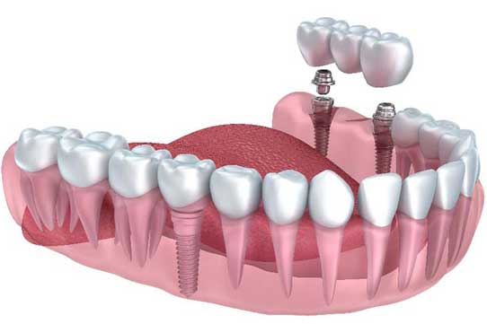 Dental Implant Cost In USA Before and After 2018