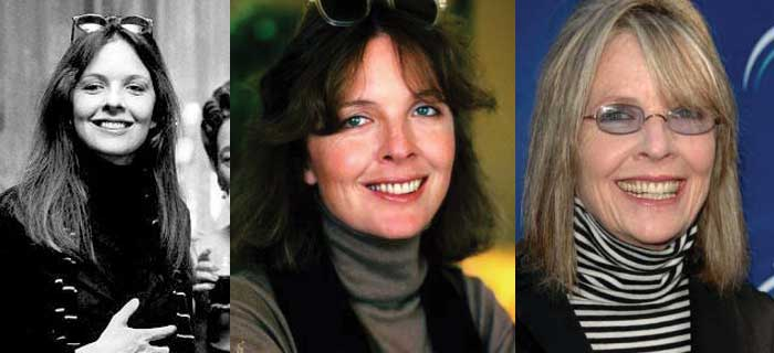 Diane Keaton Plastic Surgery Before and After 2018
