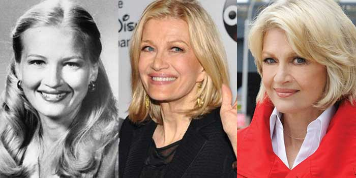 Diane Sawyer Plastic Surgery Before and After 2018