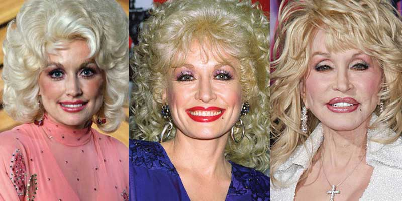 Dolly Parton Plastic Surgery Before and After 2018